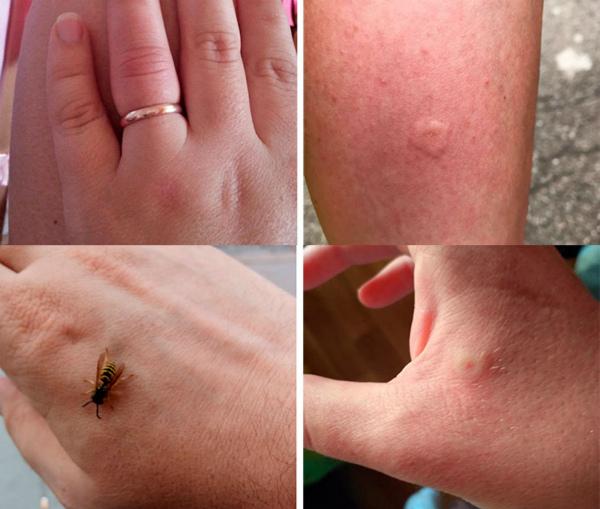 Уксила оса симптомы